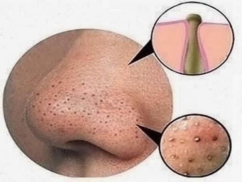 Foto mostrando Cravo preto ou comedão é um problema comum na pele