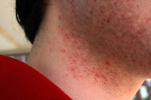 Foto mostrando a A foliculite ou pelo encravado é bastante comum após o barbear ou a depilação