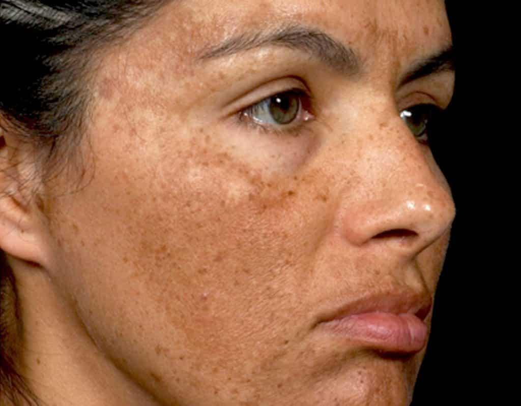 Foto mostrando o melasma que está associado às alterações hormonais