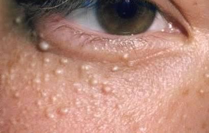 foto mostrando O milium são pequenos cistos que podem aparecer na face