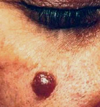 Foto mostrando O nevo melanócito é popularmente conhecido como pinta ou sinal