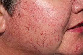 Foto mostrando a Telangiectasia é um tipo de varizes que aparece na face